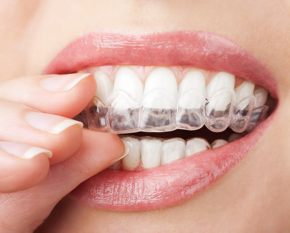 where can i find the best same day dentist in stuart near me?